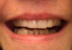lumineer-veneers-pic2.jpg